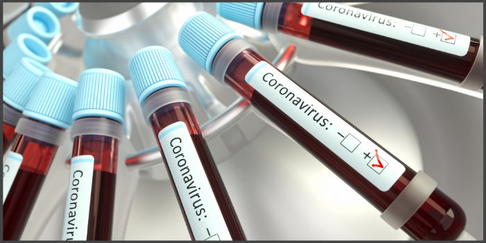 Novel Coronavirus Update – Dos and Don'ts Thumbnail